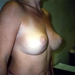 Plastie_Mammaire_004_apres