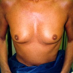 protheses_mammaires_002_avant