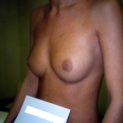 protheses_mammaires_007_avant