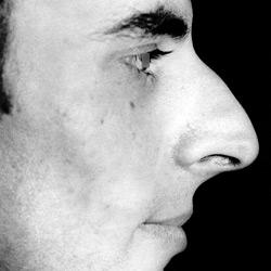 rhinoplastie_002-homme_avant
