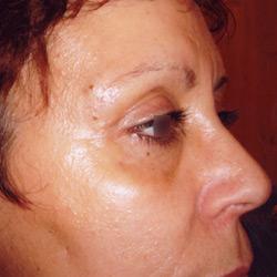 blepharoplastie_002_apres
