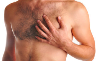 Homme-Gynecomastie Dr Thierry Aboudaram