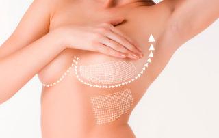 Seins-Plastie-mammaire Dr Thierry Aboudaram