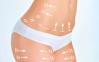 Silhouette-BodyLift Dr Thierry Aboudaram